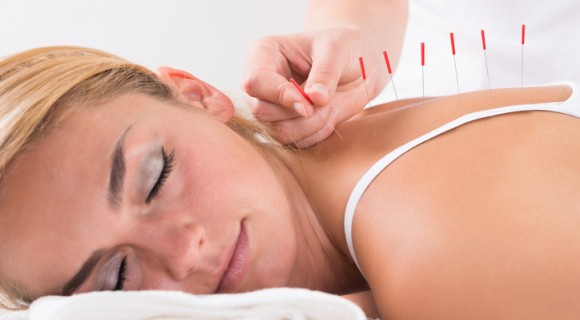 Acupuncture at our Andover centre